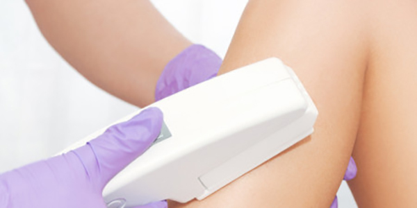 brazilian hair removal lakewood co